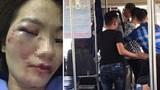 Khởi tố vụ án nhóm đối tượng hành hung nữ nhân viên xe buýt ở Ứng Hòa