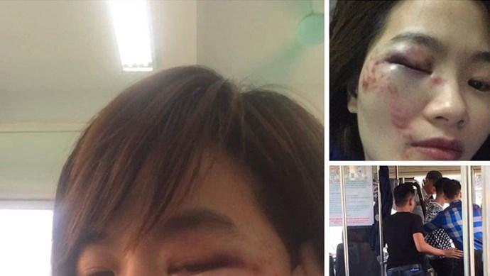 Nữ phụ xe bị 4 nam thanh niên hành hung trên xe buýt 103B