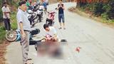 Xe máy tông vào chó chạy qua đường, hai vợ chồng thương vong