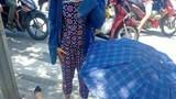 Người phụ nữ gãy gập cổ chân vì áo chống nắng bị cuốn vào bánh xe